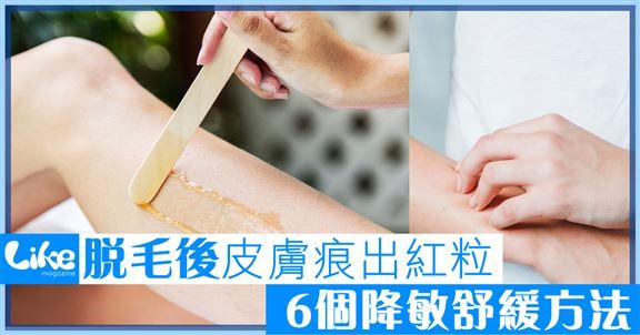 脫毛後皮膚出紅粒痕又腫                   6個舒緩止敏方法