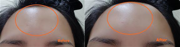 用了產品後,額頭位置的細紋有減淡。