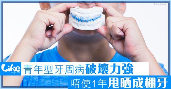 青年型牙周病破壞力強              唔使1年甩晒成棚牙