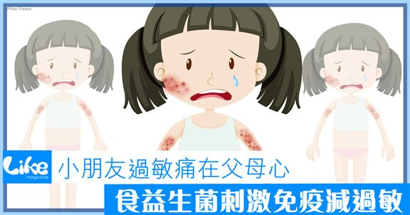 小朋友過敏痛在父母心│食益生菌刺激免疫減過敏